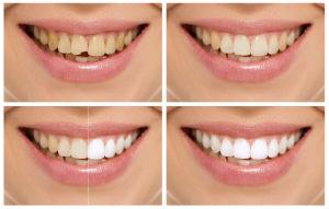 Dr Price | Dentist Washington DC