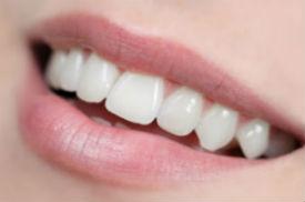 Dental Fillings   Dr. Price   Dentist Silver Springs