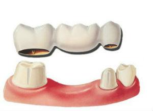 Dr Price   Dental Bridge   Alexandria VA Dentits