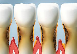 Gum Disease | Dr. Price | Dentist Alexandria