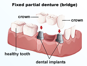 Implants | Dr. Price | DC Dentist
