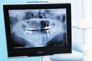 Digital X-Rays | Dr. Price | Washington DC Dentist